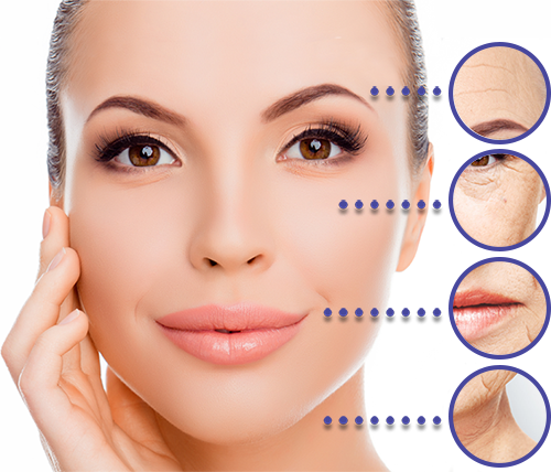 Facelift without surgery, fillers from Botox!
