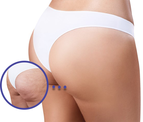 The alternative to liposuction